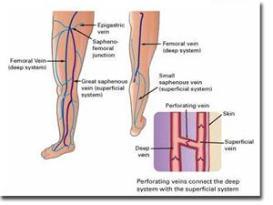 Le vene varicose: come riconoscerle e prevenirne la formazione
