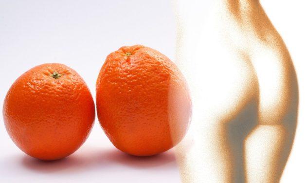 Eliminare la cellulite: oggi è possibile